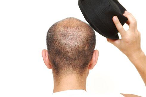 Mitos atau Fakta, Sering Pakai Topi Bikin Rambut Rontok dan Botak?
