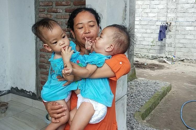 Anaya dan Inaya bayi kembar siam saat digendong ibunya Husniati
