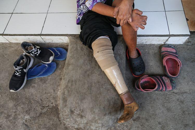 Juleha (34), eks penderita penyakit kusta di Kampung Sitanala, Kelurahan Karangsari, Kecamatan Neglasari, Kota Tangerang, Banten, Selasa (20/8/2019). Di kampung yang berada di belakang RS dr. Sitanala ini dihuni sekitar 1000 eks penderita kusta dan keluarganya.