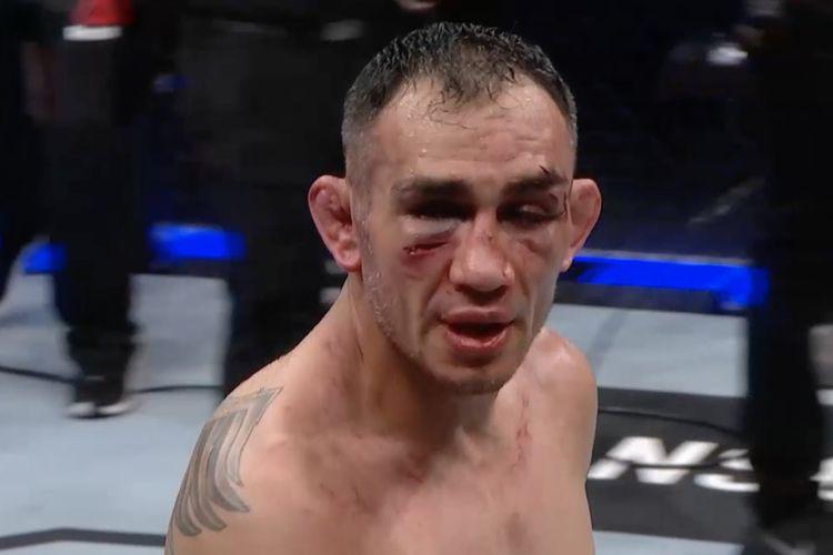 Luka-luka di muka Tony Ferguson setelah pertarungan menghadapi Justin Gaethje di UFC 249, Minggu (10/5/2020) pagi WIB.