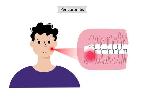 Perikoronitis
