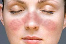 9 Gejala Awal Penyakit Lupus pada Anak