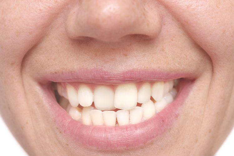 Ilustrasi gigi bengkok