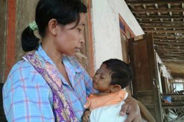 Bayi Arindita digendong ibunya di rumahnya, Sabtu (15/11/2014).