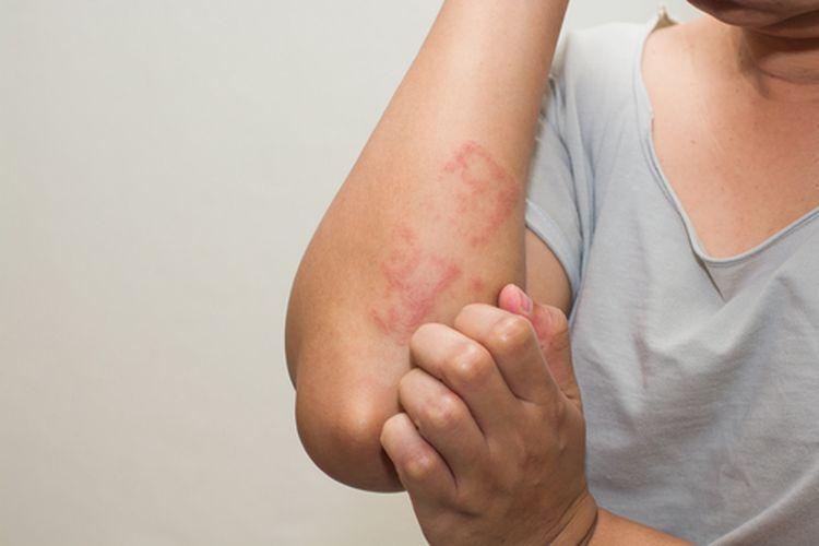Penyebab eksim pada kulit bisa karena faktor eksternal, seperti suhu, keringat, dan iritan.