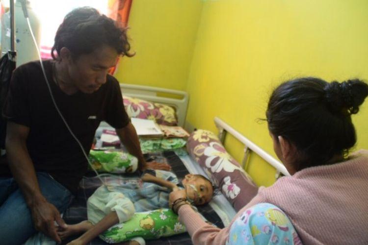 Damar, anak usia 3 tahun dari Desa Wambongi, Kecamatan Batu Atas, Kabupaten Buton Selatan, Sulawesi Tenggara, dirawat di RSUD Palagimata kota Baubau. Damar sudah sepekan dirawat di RSUD karena menderita gizi buruk.