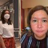 Ada Penyakit Kulit Rosacea, Jadi Alasan Maia Estianty Punya Klinik Sendiri