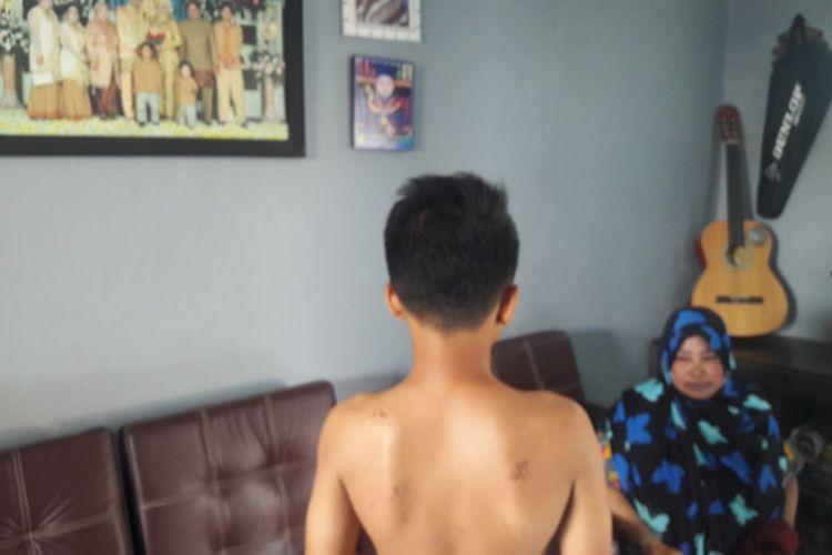 Rizki menunjukan luka zengatan tawon di tubuhnya, Kamis (21/11/2019)