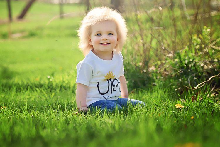 Taylor Mcgowan, balita 18 bulan yang alami mutasi genetik langka bernama sindrom rambut tak bisa disisir.
