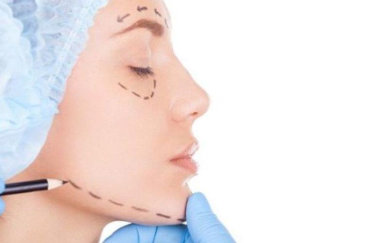 ilustrasi operasi plastik di bagian wajah.