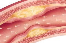 8 Faktor Penyebab Kolesterol Tinggi, Tak Hanya dari Makanan