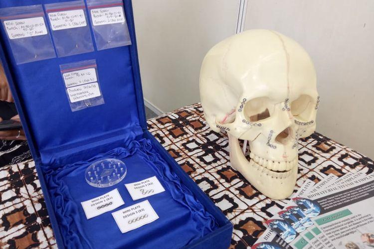 Screw and miniplate implant craniomaxillofacial yang dikembangkan oleh sivitas akademika FKUI dan FTUI.