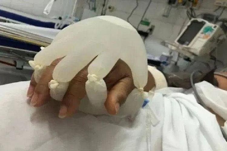 Gambar yang diunggah editor opini Gulf News Sadiq Bhat menunjukkan tangan seorang pasien Covid-19 di Brasil diikat oleh sarung tangan karet yang sebelumnya diisi air panas. Cara itu untuk memberikan ketenangan kepada pasien, untuk memberi stimulasi bahwa mereka diperhatikan keluarganya.