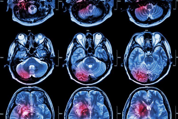 Ilustrasi MRI, otak