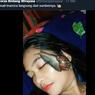 Viral, Video Perempuan Taruh Siput di Wajah untuk Kecantikan, Ini Penjelasan Dokter