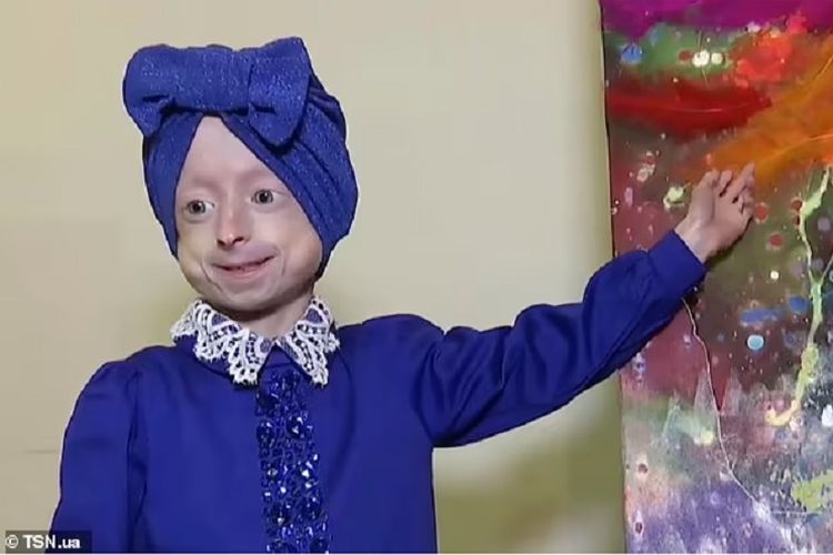 Iryna Irochka Khimich, seorang gadis berusia 10 tahun asal Ukraina yang mengalami kondisi medis bernama progeria, yang membuat tubuhnya sama seperti umur 80 tahun. Iryna dilaporkan meninggal pada Kamis waktu setempat (1/7/2021).