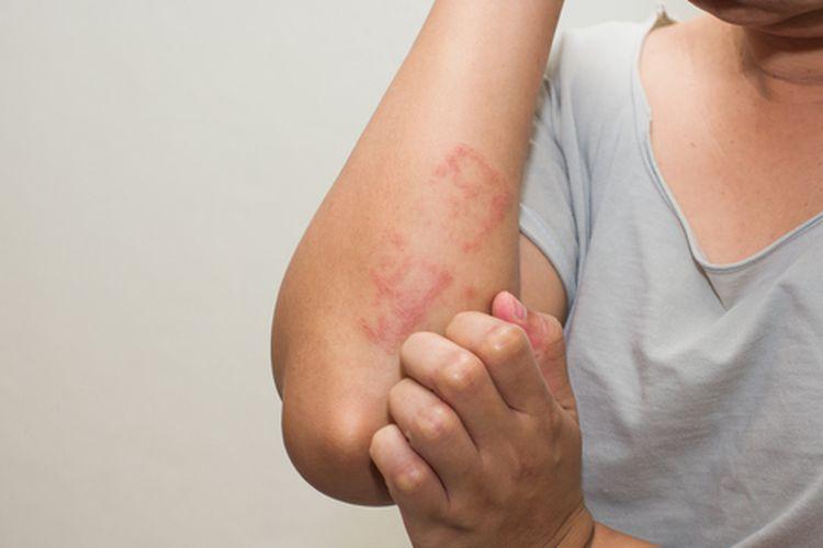 Meski eksim kulit gatal, ternyata penderitanya disarankan untuk tidak menggaruknya.