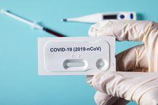 Ilmuwan AS Kembangkan Tes Darah Deteksi Antibodi terhadap Virus Corona