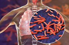 TBC Penyakit Menular yang Bisa Diobati, Patuhi Standar Pengobatannya