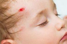 10 Gejala Hemofilia yang Perlu Diwaspadai