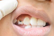 5 Hal Sederhana yang Bisa Rusak Gigi