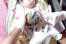 Bayi di Riau Ini Menderita