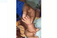 Kisah Petugas Damkar Lepaskan Cincin di Jari Bayi Usia 2 Bulan...