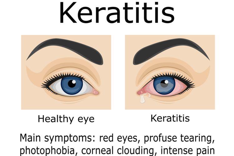 Ilustrasi keratitis