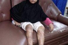 Kisah Bocah 9 Tahun, Kedua Kaki Melepuh di Lahan Gambut yang Terbakar