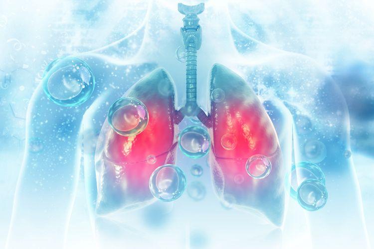 Ilustrasi pneumonia, virus dan bakteri menginfeksi paru-paru manusia.