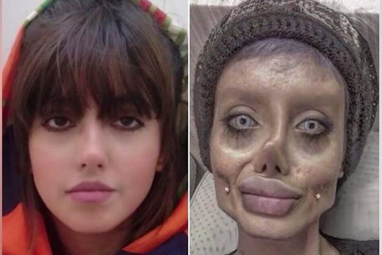Sahar Tabar yang bernama asli Fatemeh Khishvand, sebelum bedah kosmetik (kiri) dan setelah bedah kosmetik yang membuatnya dijuluki zombie Angelina Jolie.