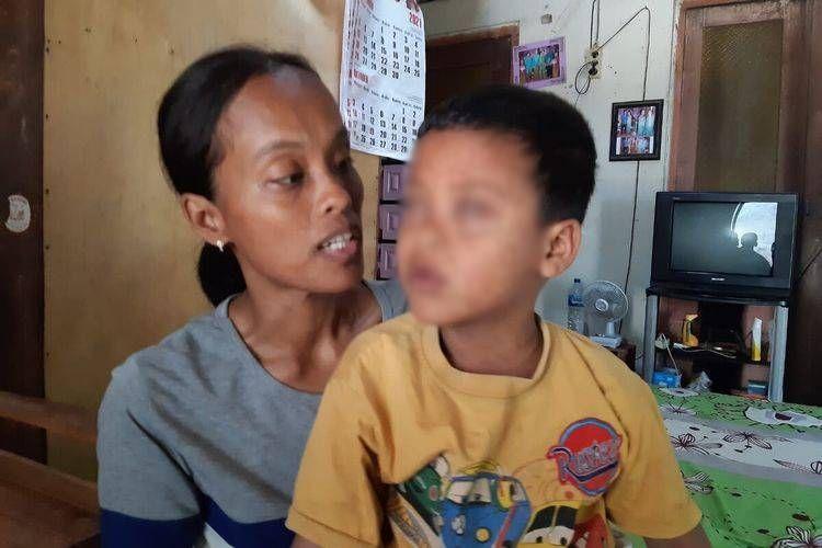 Umiyatun (32) dan anaknya, Rangga Dimas Iskandar asal Dukuh Nglungge RT 002, Desa Sidowayah, Kecamatan Polanharjo, Kabupaten Klaten kehilangan penglihatan ditemui di rumahnya, Rabu (13/10/2021).