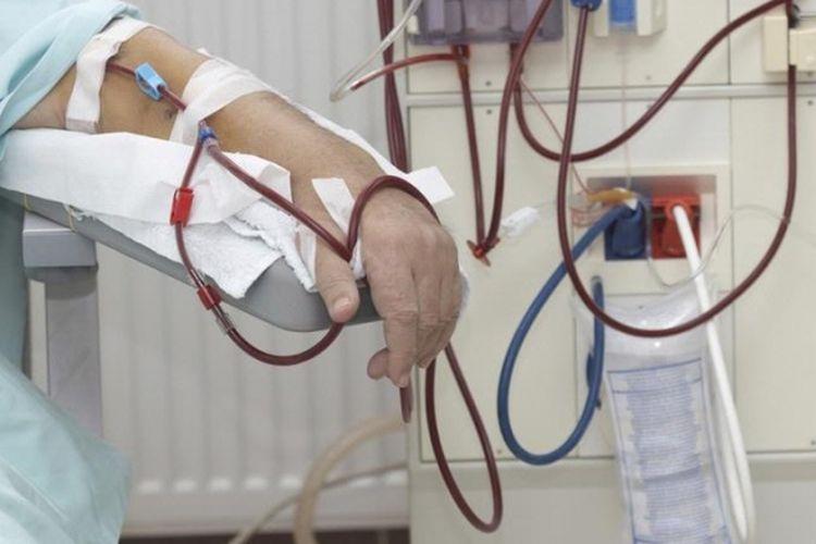 Ilustrasi metode cuci darah.