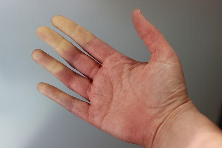 Ilustrasi Raynaulds Syndrome.