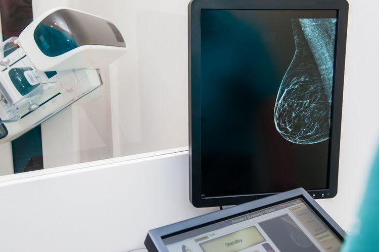 Ilustrasi tes mamografi untuk mendeteksi kanker payudara