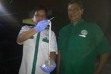 Kasus Cacing Pita 10,5 Meter, Warga Diduga Makan Daging Babi Mentah