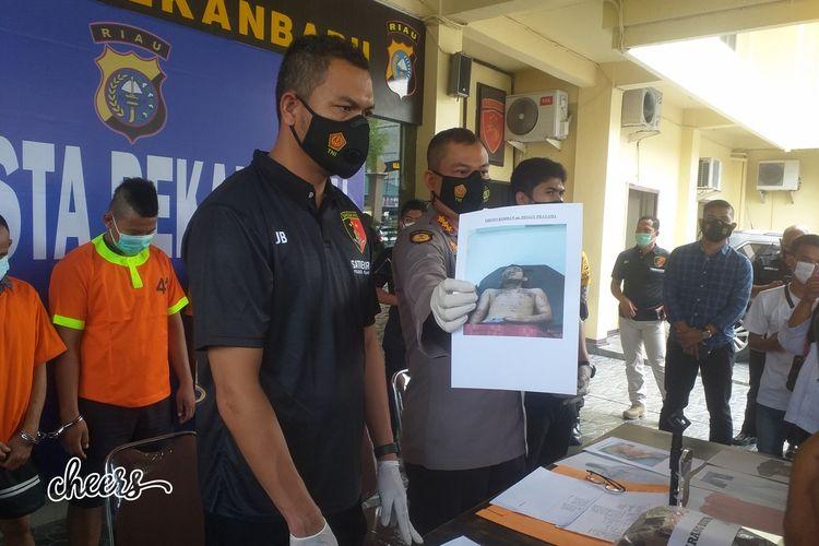 Kapolresta Pekanbaru Kombes Pol Nandang Mumin Wijaya memperlihatkan salah satu foto korban penyiraman air keras yang mengalami luka berat, saat menggelar konferensi pers di Polresta Pekanbaru, Riau, Rabu (20/1/2021).