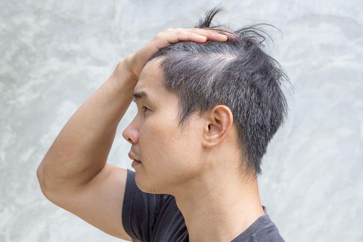 Ilustrasi rambut beruban