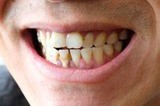 Dua Tumbuhan Ini Bisa Cegah Plak Gigi, Begini Penjelasan Pakar UGM