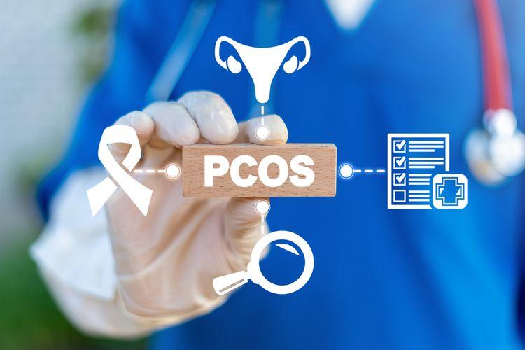 Ilustrasi PCOS