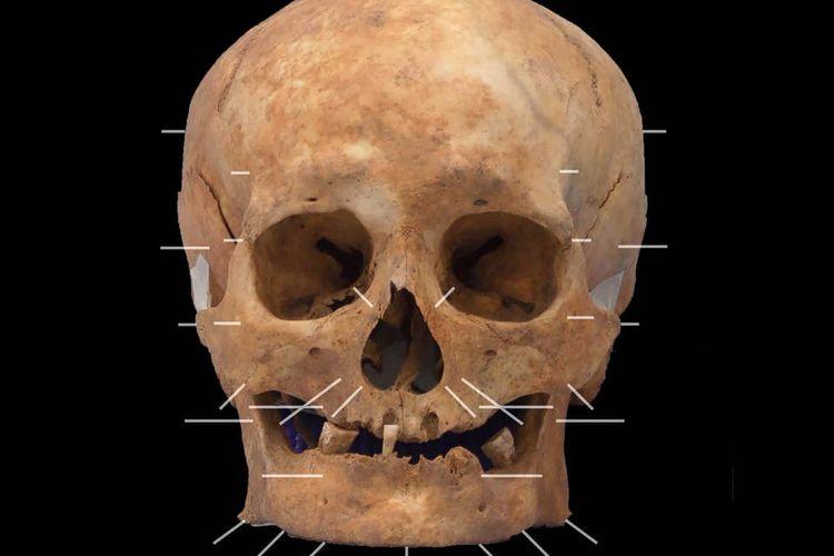 Tengkorak tersebut ditemukan bersama dengan 60 buah tulang-belulang lainnya di bawah tanah Aberdeen Art Gallery.