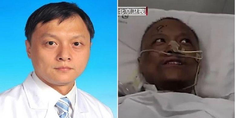 Dr Yi Fan, satu dari dua dokter di Wuhan, China yang dilaporkan kulitnya menghitam setelah nyawa mereka bisa diselamatkan dari Covid-19. Bersama koleganya Dr Hu Weifeng sama-sama terinfeksi pada 18 Januari.