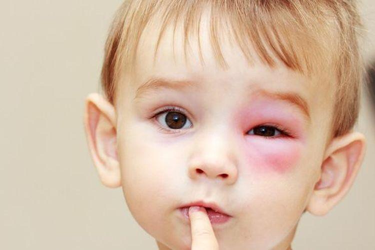 Ilustrasi alergi.