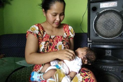 Tak Punya Lubang Anus, Bayi Ini Buang Air Lewat Lubang Buatan di Perut