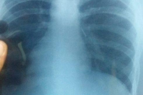 Paku yang Tertelan Siswa SMP Sempat Tak Ditemukan, Ternyata di Paru-paru