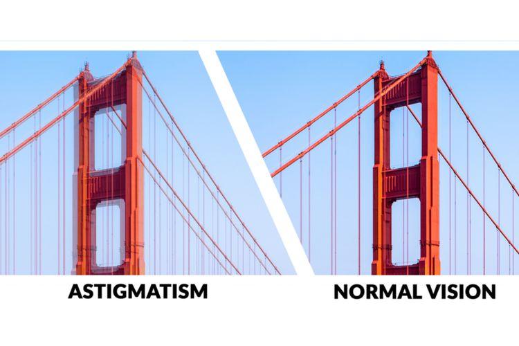 ilustrasi astigmatisme