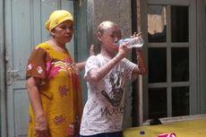 Perjuangan Membesarkan Ari Wibowo yang Berkulit Seperti Ular