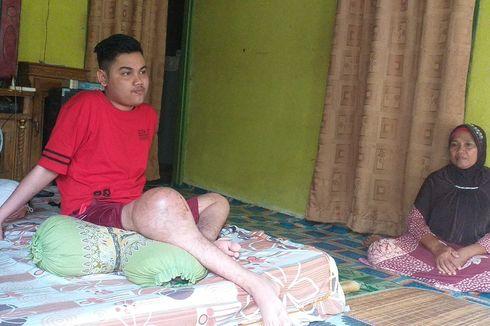 Kisah Marwan, 3 Tahun Menderita Akibat Tumor di Kaki Kanan, hingga Putus SMA