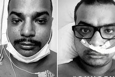 Ejek Vaksin Covid-19, Pria Ini Meninggal karena Virus Corona