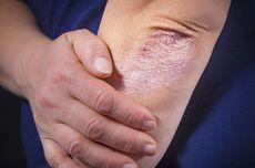 Mengenal Psoriasis, Penyakit Kulit Kering dan Menebal